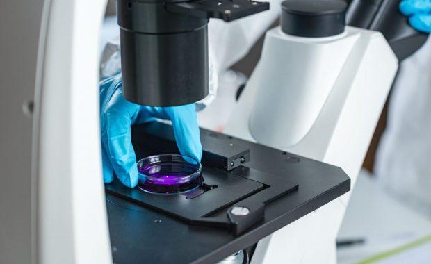 Un caso reciente de brote mortal de Listeria en España