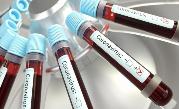 Coronavirus: ¿qué es la desinfodemia?